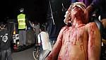 الدرك الملكي يستنفر عناصره بعد إعتداء شنيع على شاب بالسلاح الأبيض بالدريوش